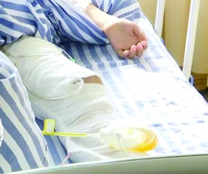 6岁小男孩边充电边玩手机游戏 腿部被严重炸伤